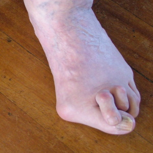 bad bunion crossover toes