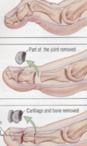 Hammer Toe Surgery