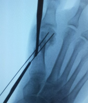 Having Foot Surgery? Read This