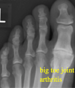 Big Toe Arthritis